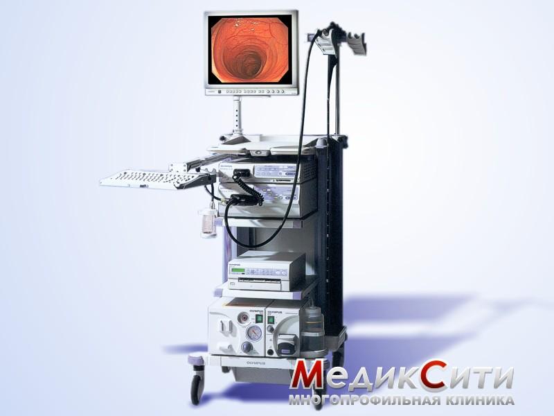 Evis Exera II Olympus CV-180 – цифровой эндоскоп для диагностики полых органов