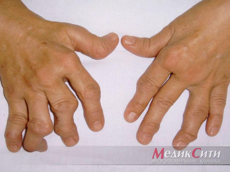 Ревматоидный артрит. Фото типичной деформации суставов.