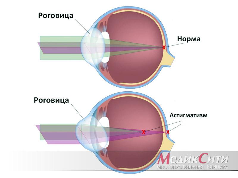 Линзы для глаз улучшающие зрение