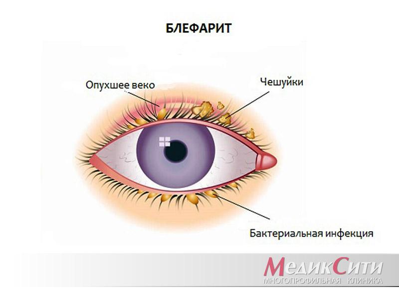 Блефарит - виды, симптомы и лечение