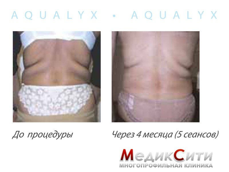 Акваликс отзывы фото до и после