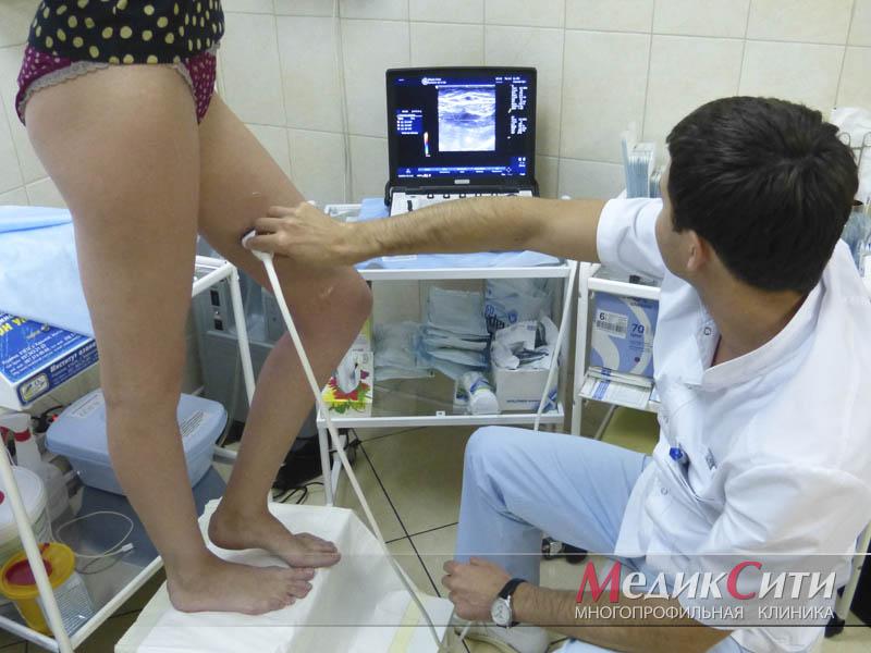 Оперативное лечение варикозного расширения вен нижних конечностей