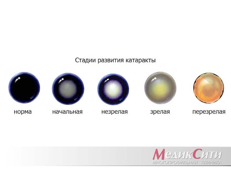 Симптомы и стадии катаракты
