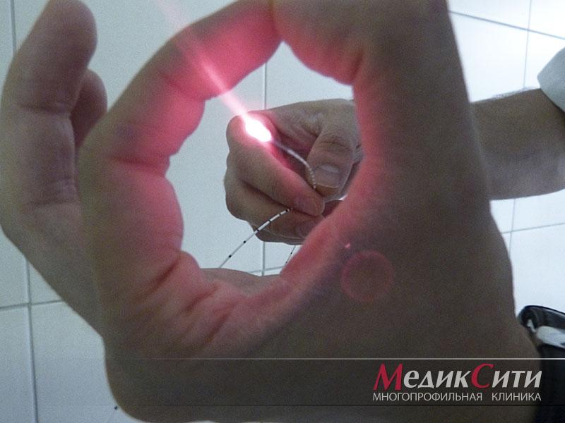 Лазерная коагуляция в МедикСити