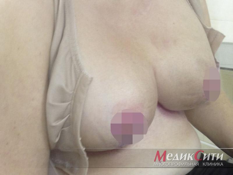 Фото после подтяжки груди с коррекцией ареол и сосков