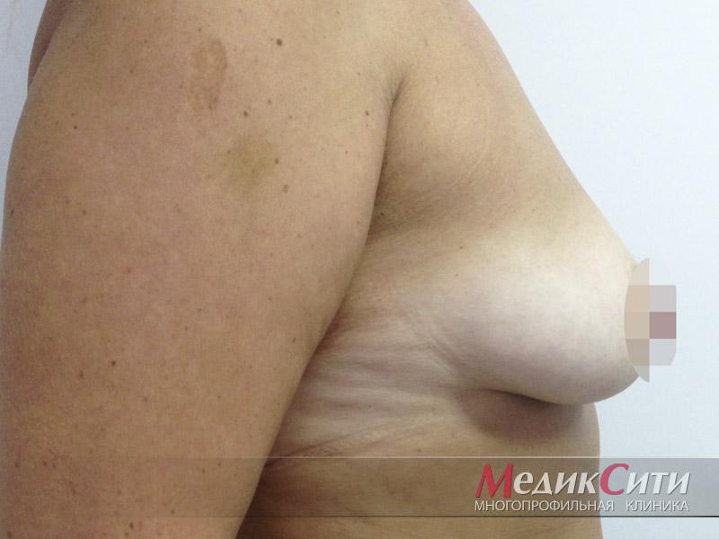 ДО подтяжки груди
