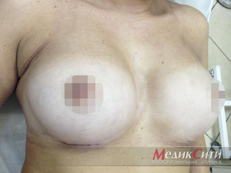 ПОСЛЕ подтяжки груди