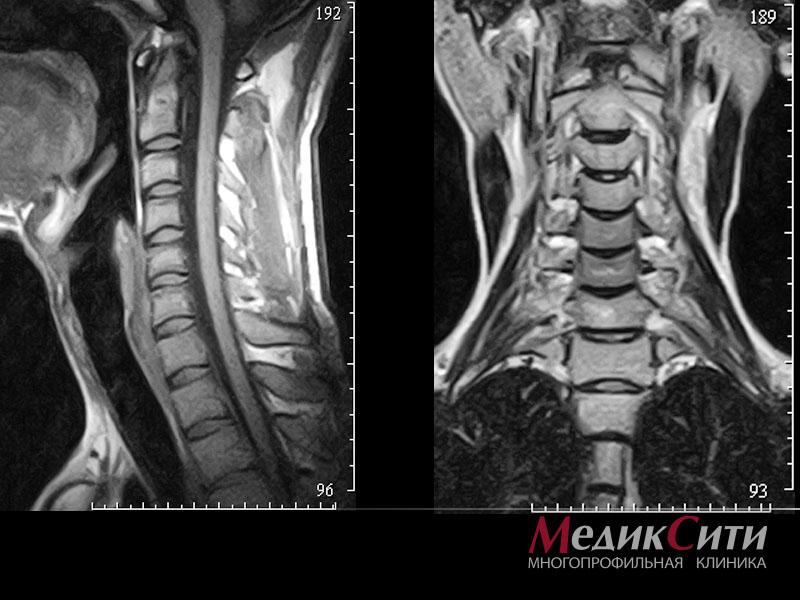 МРТ позвоночника (шейного, грудного, пояснично-крестцового отделов)