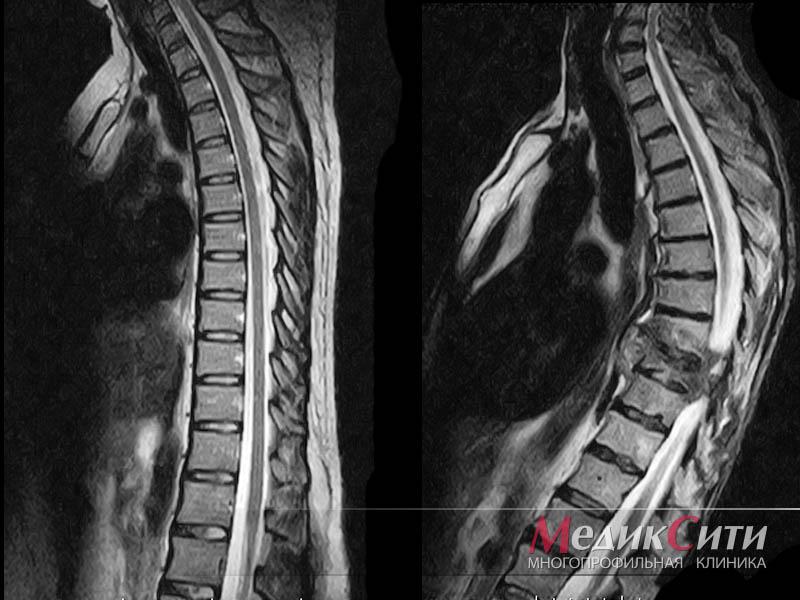 Остеопороз: симптомы и лечение. Профилактика и диагностика ...