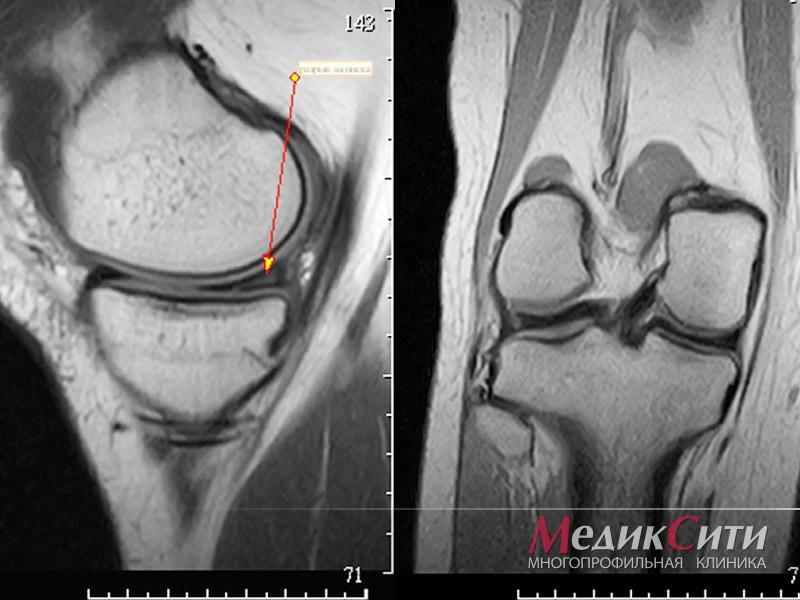 Магнитно-резонансная томография в москве коленных суставов ложный сустав при переломе