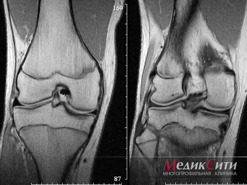 Магнитно резонансная тамография суставов восьмиобразную повязку на голеностопный сустав