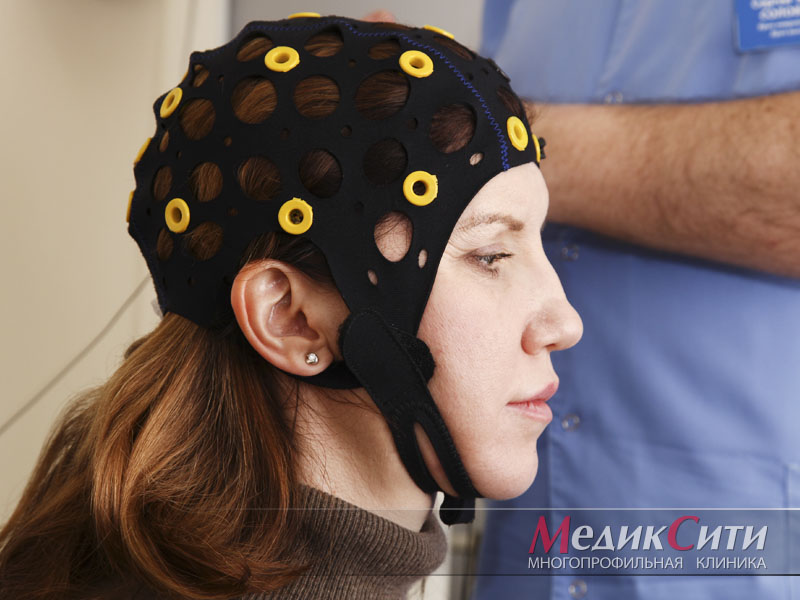 ЭЭГ при лечении головной боли