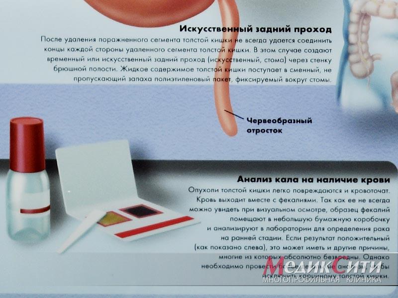 Fájdalom az alsó hátsó prosztatitis kezelésben Tavanov Vélemények a prosztatitishez