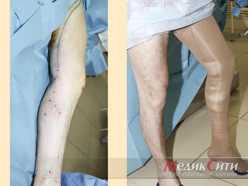Варикозная болезнь вен нижних конечностей мкб 10