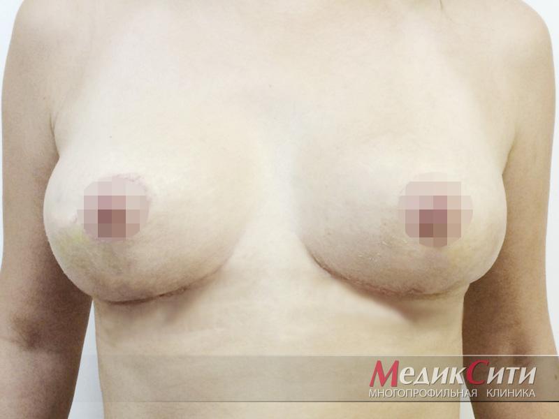 ПОСЛЕ проведения редукционной маммопластики