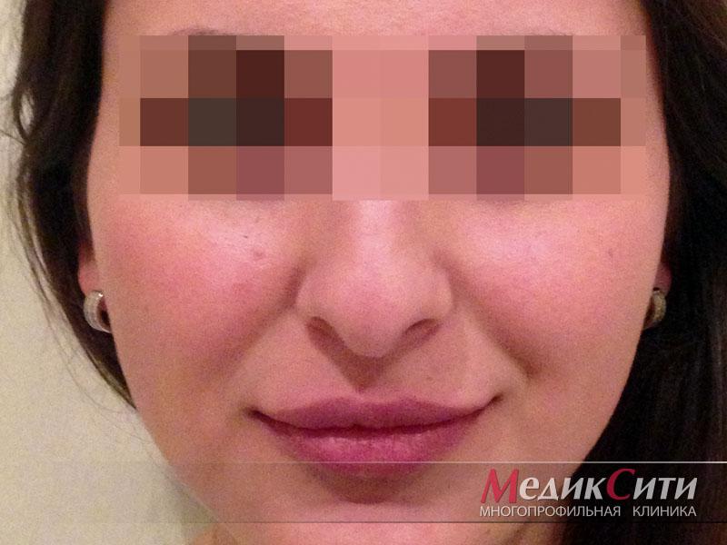Операция по исправлению перегородки носа