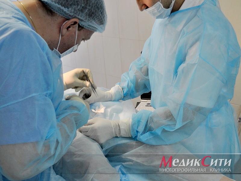 Лазерное лечение фимоза