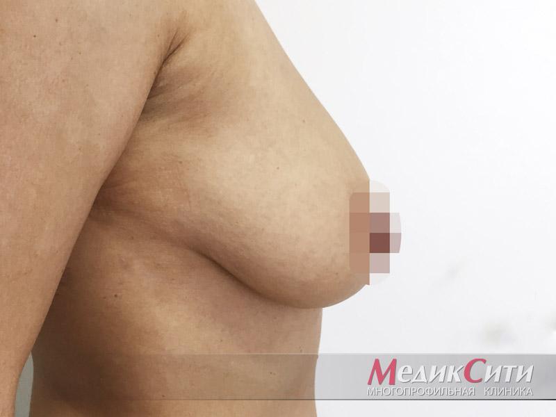 ДО проведения якорной подтяжки груди