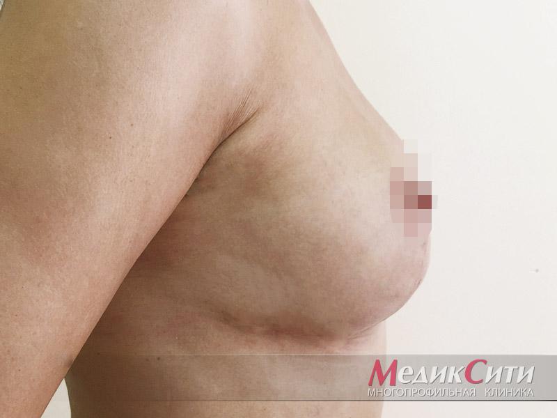 ПОСЛЕ проведения якорной подтяжки груди