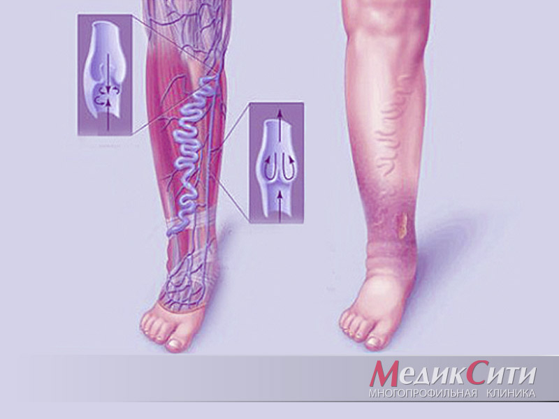 Воспаление поверхностных вен