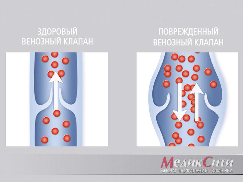 Варикозная болезнь - лечение в Инновационном сосудистом центре: симптомы и стадии варикоза вен нижних конечностей