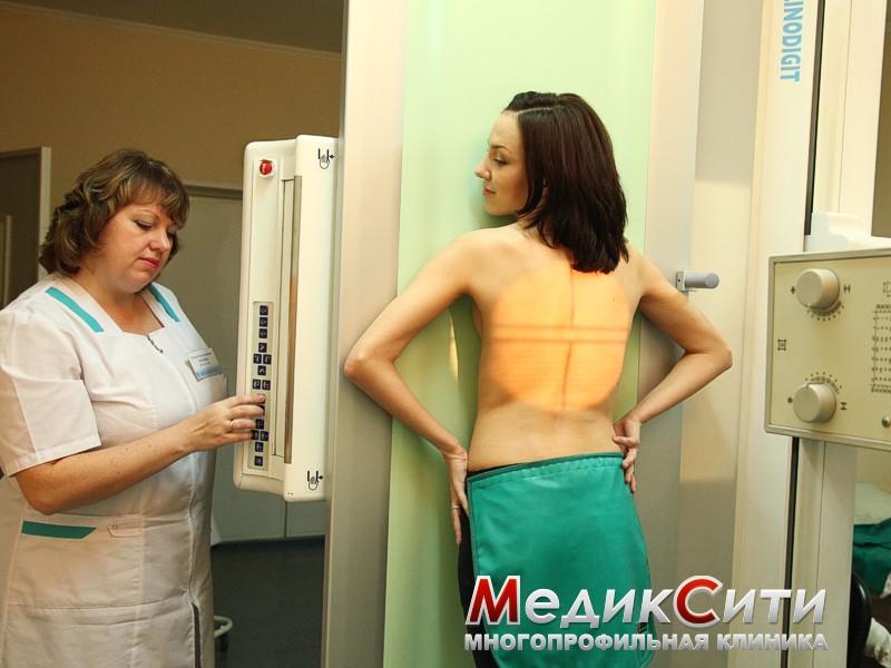 Рентген в клинике МЕДИКСИТИ