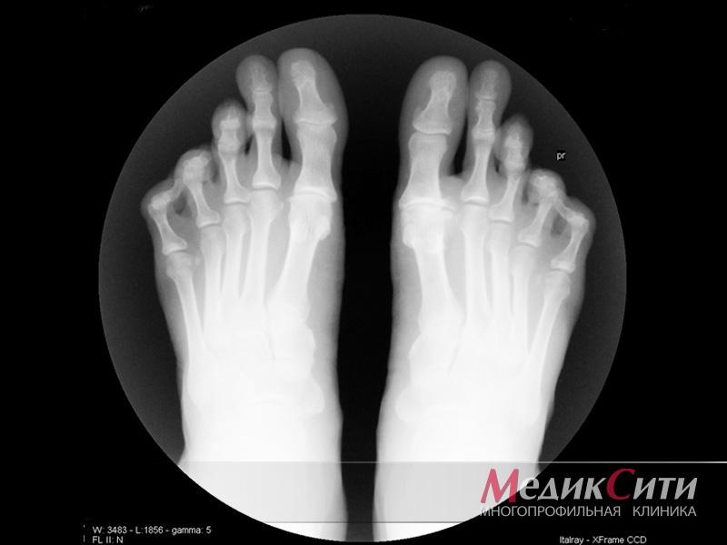 Остеоартроз коленного сустава и плазмоферез настойка мухомора от суставных болей
